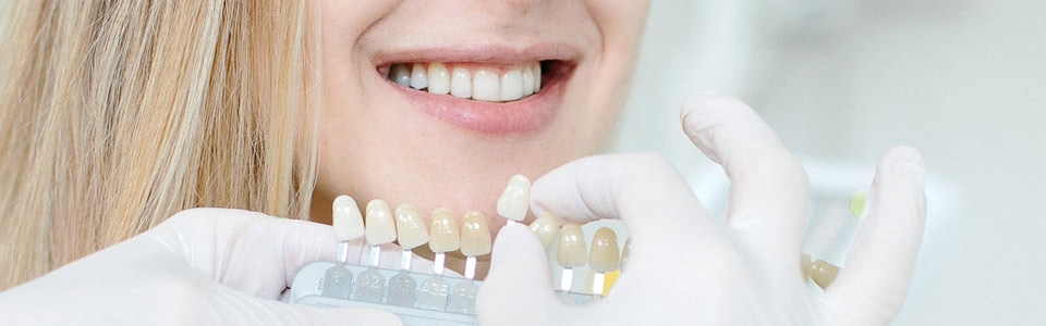 Zahnaufhellung beim Bleaching Experten Dr. Dominik Tima